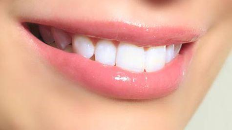 Albirea dintilor, cu 20% mai ieftina