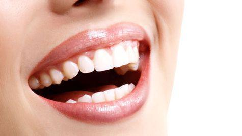 Problemele dentare – ce trebuie sa verifici cand mergi la stomatolog