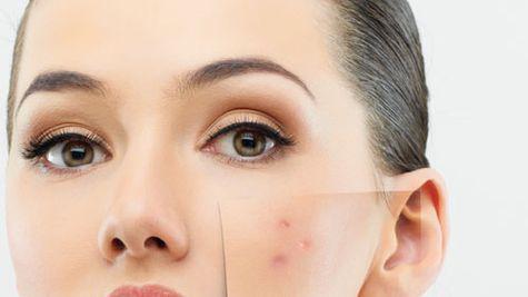 Mituri despre remediile pentru acnee